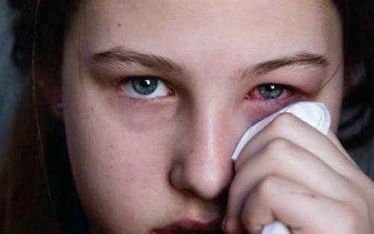 Gözde Behçet Hastalığı