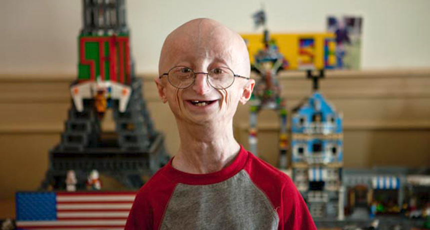 Progeria hastalığına yakalanan birisi bu şekilde gözükür daha çocukken yaşlı bir insan haline döner :(