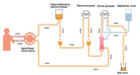 Aferez Teknikleri (Şema)